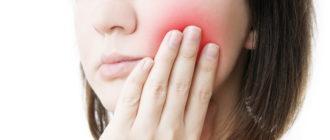 Как снять сильную зубную боль/Блог обычной женщины